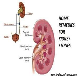 HOW CAN I MANAGE KIDNEY STONES?