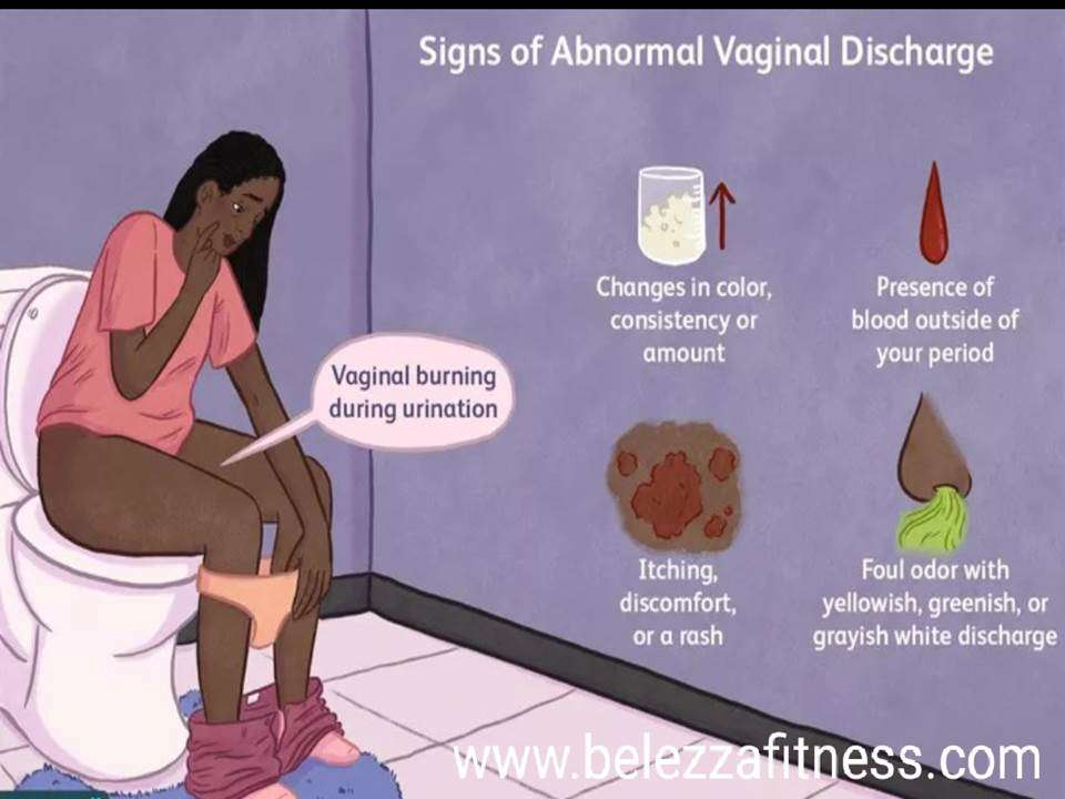 Is my vaginal discharge normal?